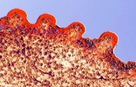 Ученые утверждают, что лечение от СПИДА найдено