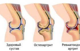 Метотрексат — эффективная борьба с ревматоидным артритом