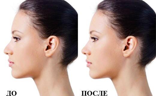 Ринопластика носа. Нюансы