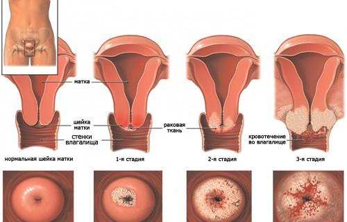 Рак шейки матки: каждая женщина должна об этом знать