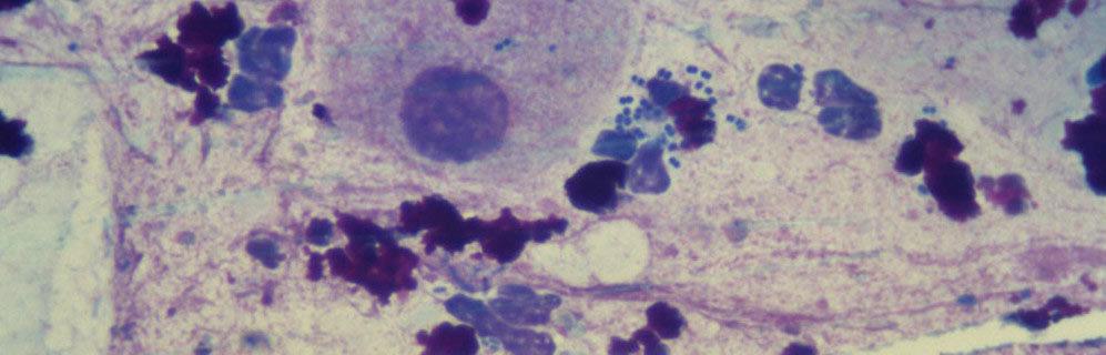 Анализ на гонорею – микроскопия