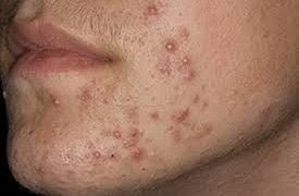 Прыщи при сифилисе