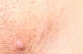 Как протекает герпес генитальный и на губах?
