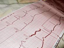 Иммунная система способна предотвратить сердечный приступ