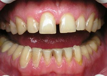 Пигментация зубов и налеты