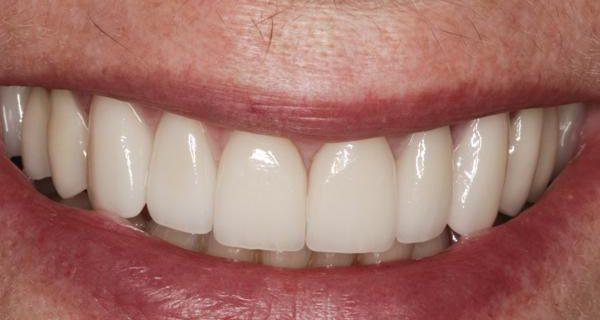 Комплексный подход к реставрации улыбки