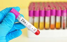 В США зафиксирована первая смерть от  вируса Зика