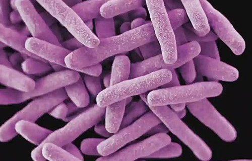 Ученые нашли ген, блокирующий распространение ВИЧ