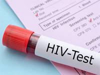 Тест на ВИЧ будет включен в программу диспансеризации