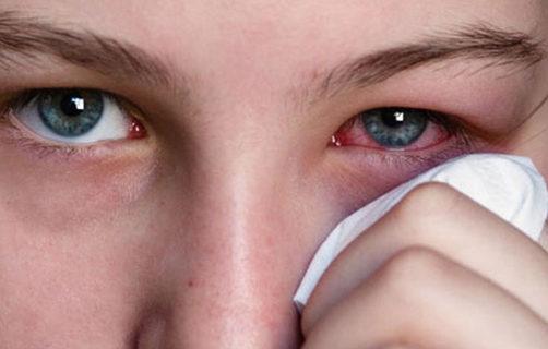Герпес на роговице глаза, конъюнктивит, симптомы
