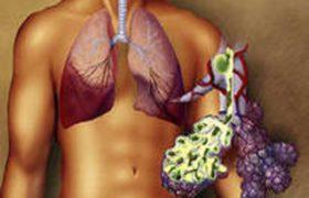 Симптомы хламидии пневмонии у детей и беременных