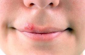 Вильпрафен при лечении хламидиоза