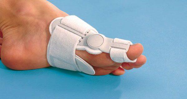 Лечение косточки на ноге: можно ли обойтись без операции?