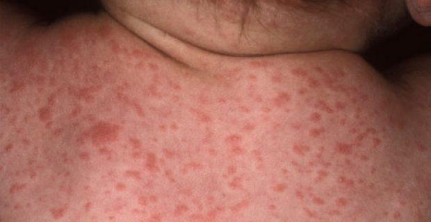 Розеола при сифилисе: симптомы