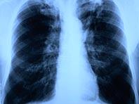 Необычный аэрозоль обещает перевернуть представления о лечении туберкулеза