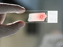 Уникальное устройство способно отличить вирусную инфекцию от бактериальной