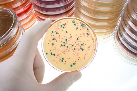 Мазок на скрытые инфекции