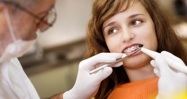 Лечение неправильного прикуса у ортодонта