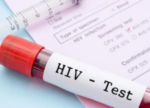 Медики создали препарат, блокирующий передачу ВИЧ половым путем