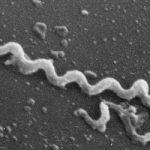 Современное возвращение сифилиса связано с новым штаммом бактерии