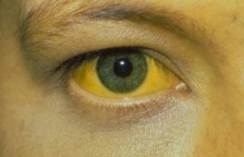 Болезнь желтуха при гепатитах