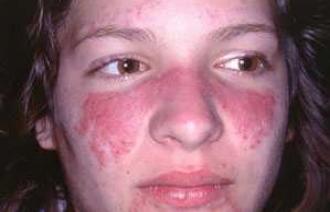 Болезнь лайма: диагностика