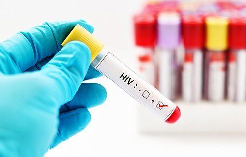 В России появился новый опасный штамм ВИЧ