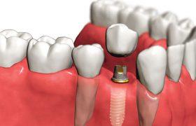 Восстановление зубов без оперативного вмешательства — имплантация