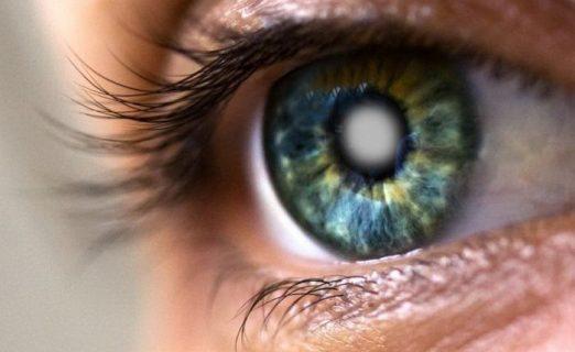 Болезни органов зрения — катаракта