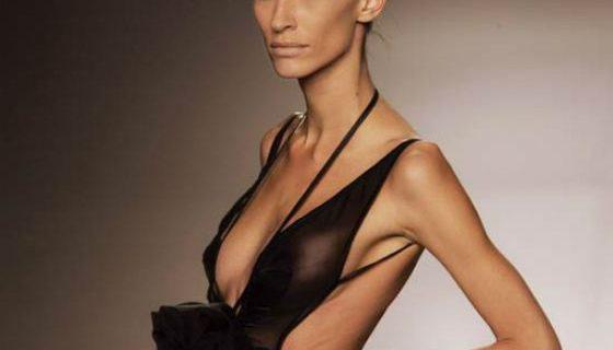 Как воздействовать на анорексика?