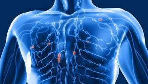 Ваша лимфа забита токсинами, если у вас есть эти 7 симптомов! 10 способов очистки!