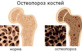 Заболевание остеопороз