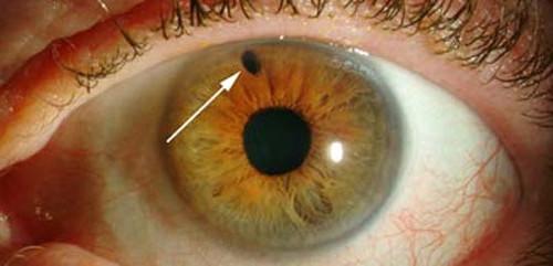 Глаукома — особенности снижения зрения и лечение болезни