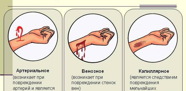 Как при оказании первой помощи остановить сильное кровотечение?
