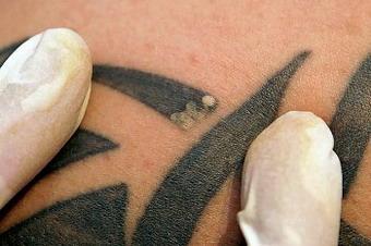 Лазерное удаление татуировки. Красота требует жертв.
