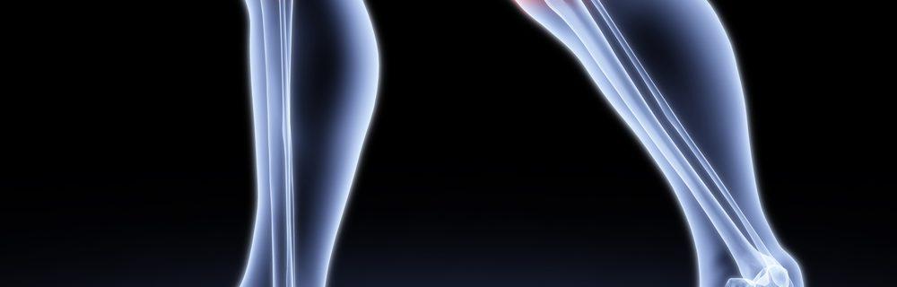Остеоартроз, остеопороз поражение суставов и дегенерация хряща