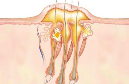 Возник фурункулез: лечение должно быть комплексным