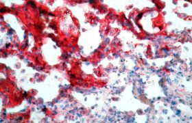 Эмболию легких можно лечить без госпитализации в клинику