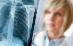 Здоровье: Заболевания легких и их признаки