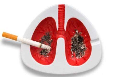 Скрытые симптомы рака легких, которые должны вас насторожить