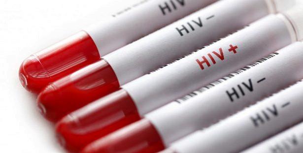 ВИЧ: что необходимо знать о самой коварной болезни нашего века