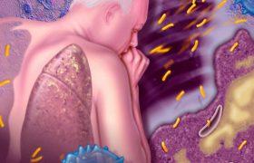 Туберкулёз. Пути передачи, методика лечения
