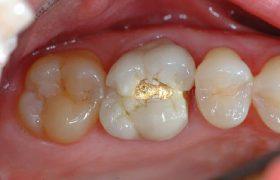 Боль под коронкой — удаление зуба