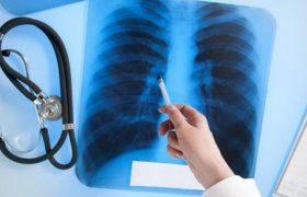 Новые глобальные обязательства по ликвидации туберкулеза