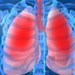 Ранние симптомы пневмонии, которые нельзя игнорировать
