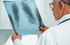Туберкулез в России могут победить к 2030 году