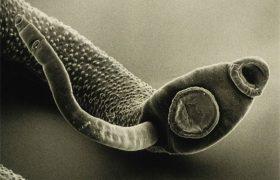 14 паразитов, которые живут в человеке