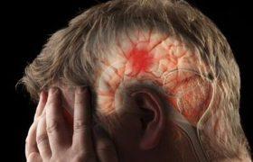 Медики назвали неизвестную ранее причину инсульта