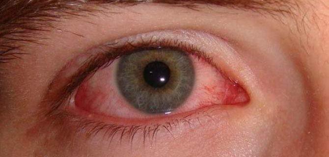 Как справиться с покраснением глаз: пять действенных способов