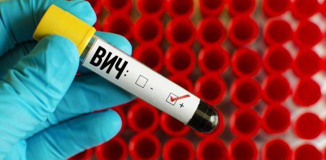 Ученые представили новое средство против ВИЧ